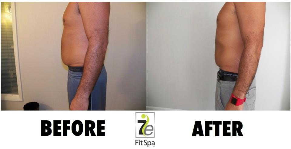 before-after-7e-fit-spa
