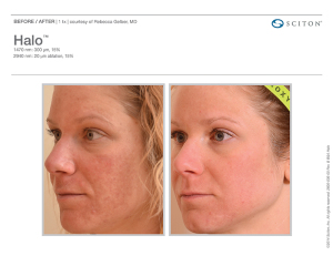 skin-rejuventation-treatment-rth-face-and-body-royal-oak-mi-48067